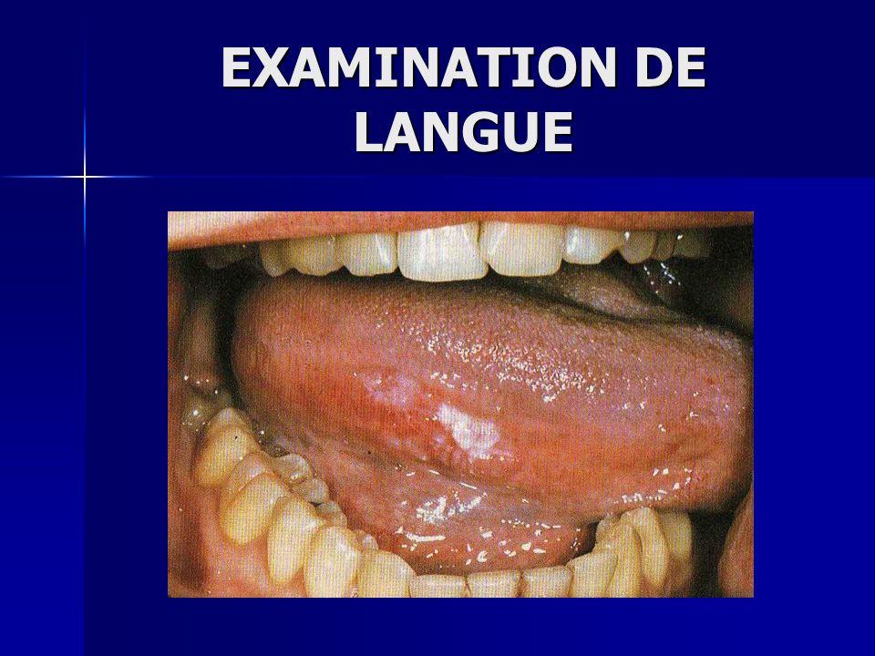 EXAMINATION DE LANGUE