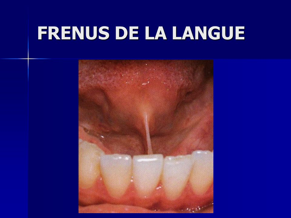 FRENUS DE LA LANGUE