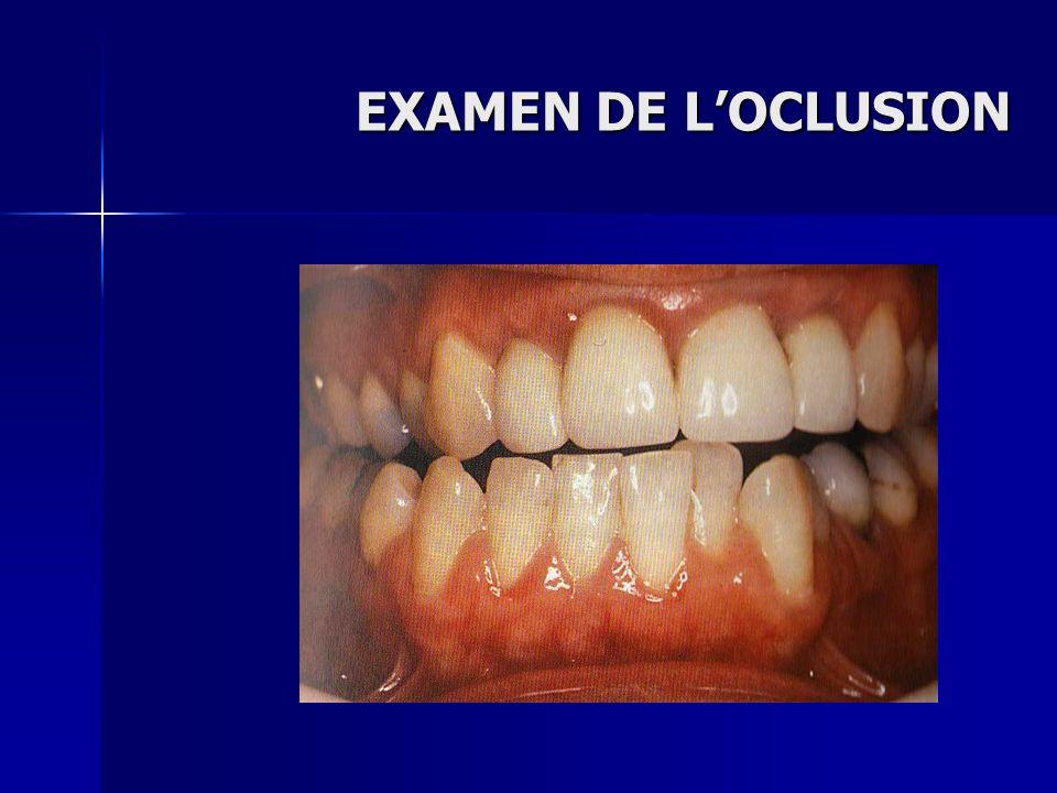 EXAMEN DE L'OCLUSION