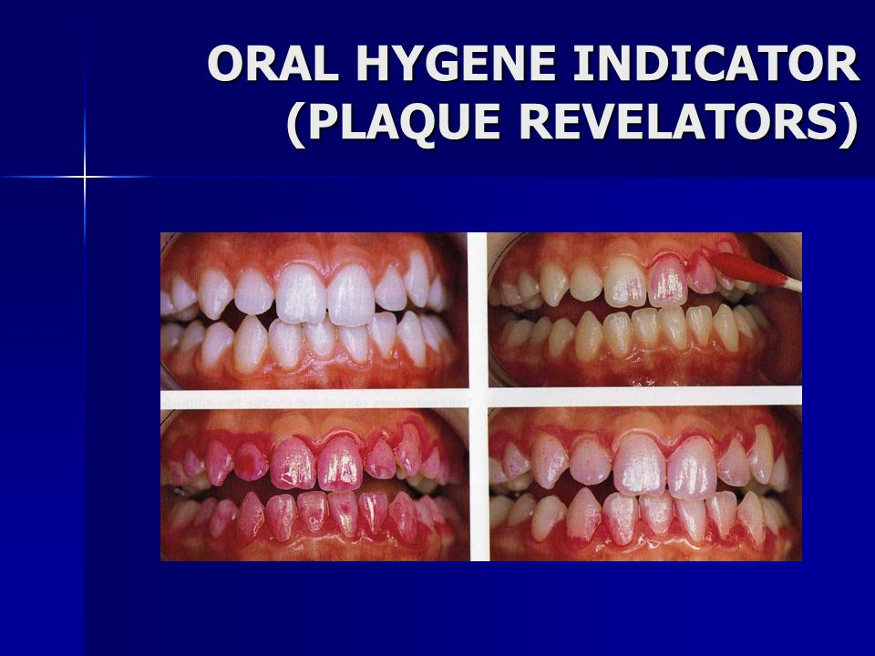 ORAL HYGENE INDICATOR (PLAQUE REVELATORS)
