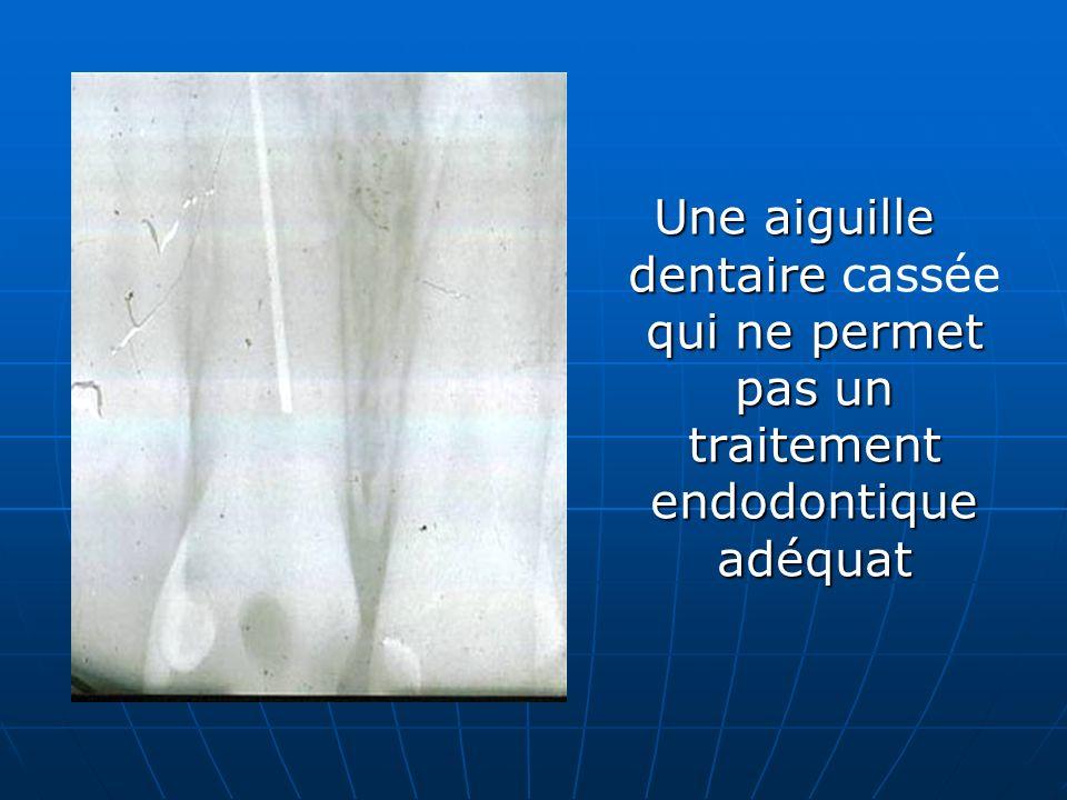 Une aiguille dentaire cassée qui ne permet pas un traitement endodontique adéquat