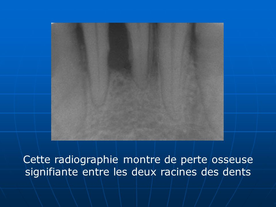Cette radiographie montre de perte osseuse signifiante entre les deux racines des dents
