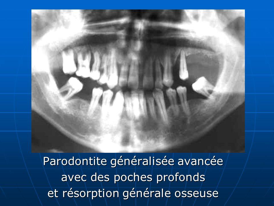 Parodontite généralisée avancée avec des poches profonds