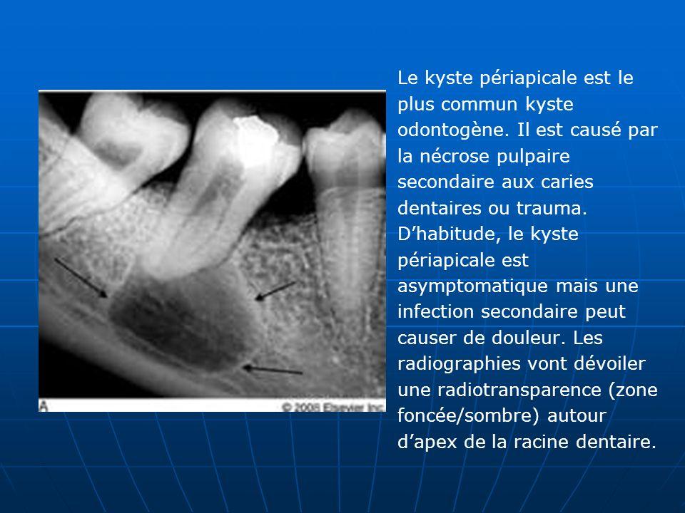 Le kyste périapicale est le plus commun kyste odontogène