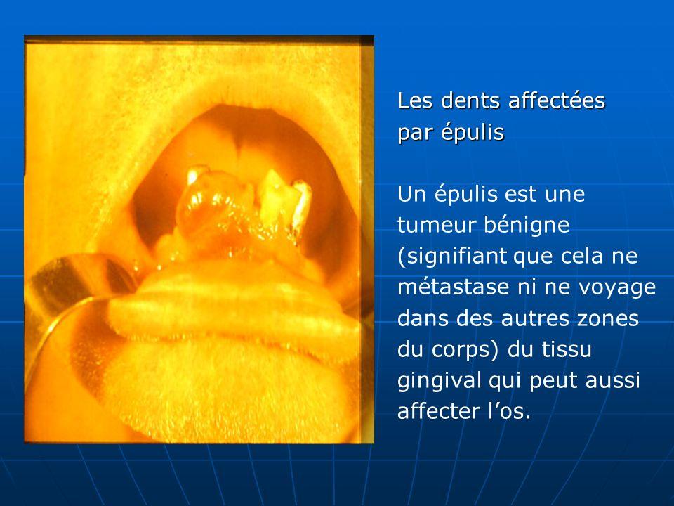 Les dents affectées par épulis Un épulis est une tumeur bénigne (signifiant que cela ne métastase ni ne voyage dans des autres zones du corps) du tissu gingival qui peut aussi affecter l'os.