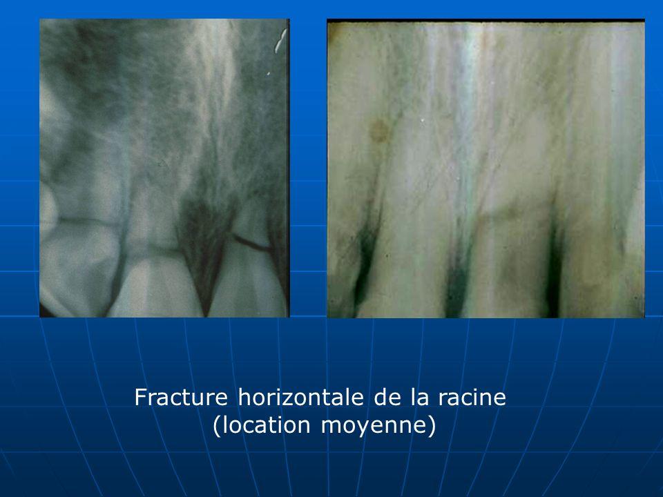 Fracture horizontale de la racine