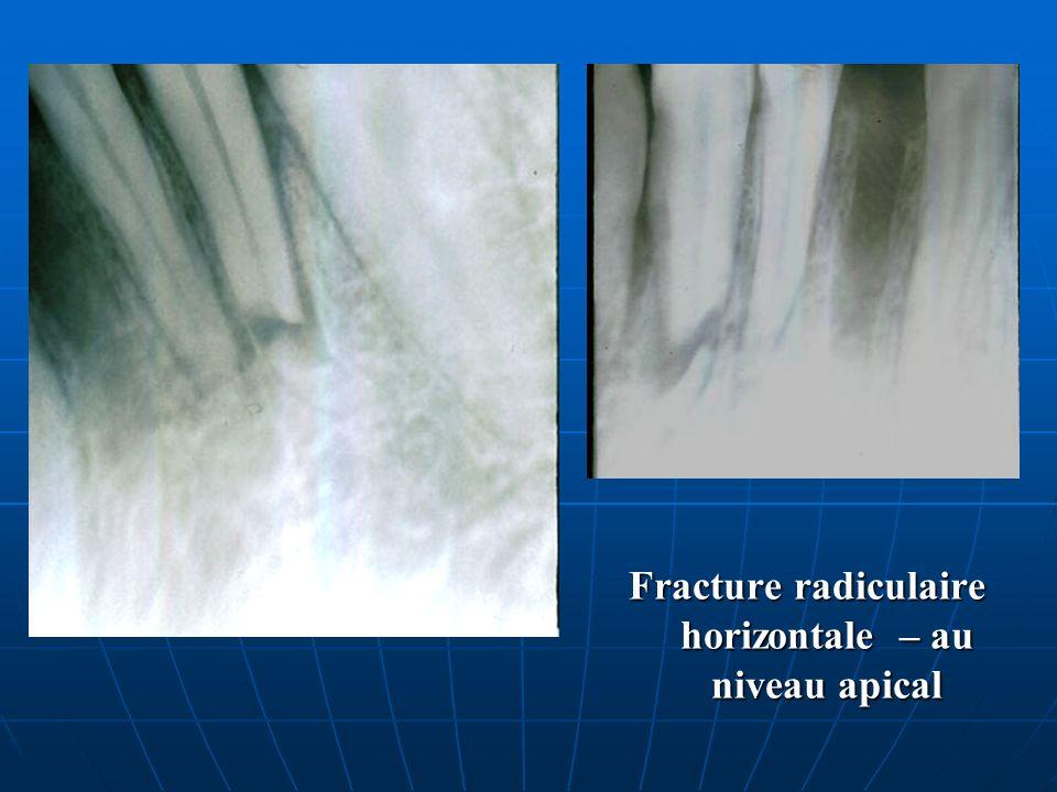 Fracture radiculaire horizontale – au niveau apical