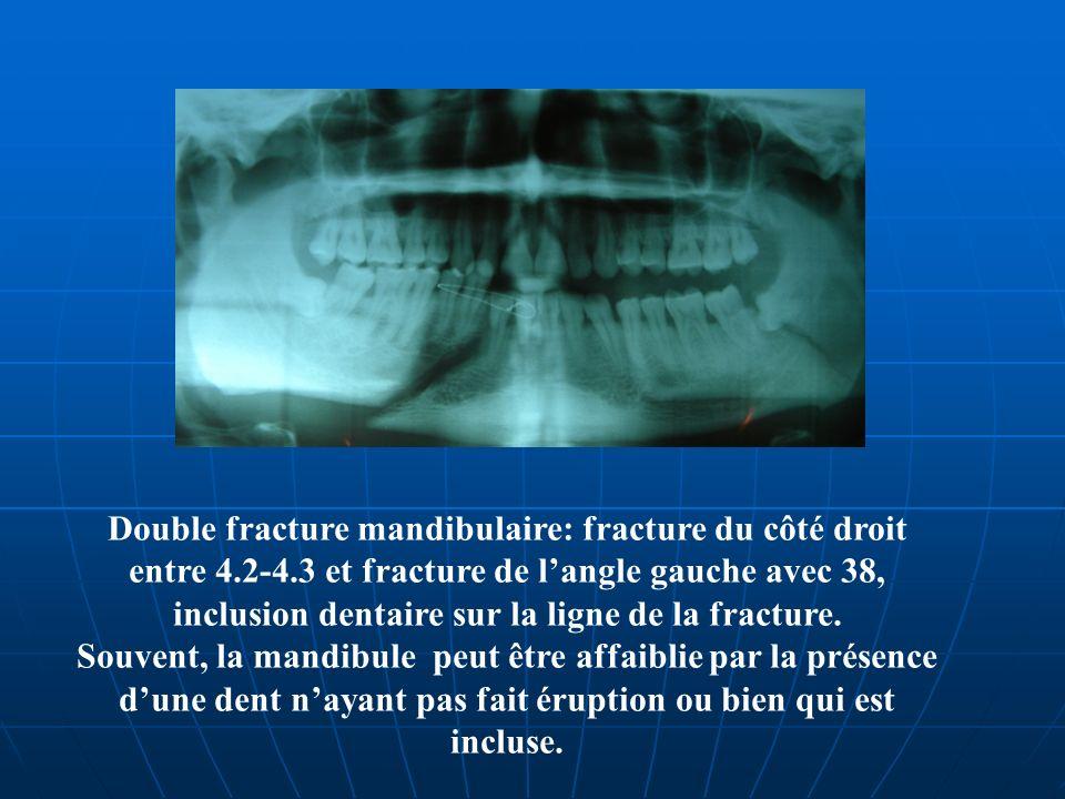 Double fracture mandibulaire: fracture du côté droit entre 4. 2-4