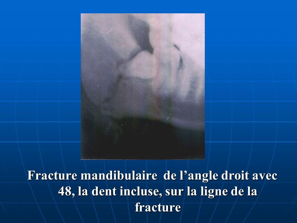 Fracture mandibulaire de l'angle droit avec 48, la dent incluse, sur la ligne de la fracture