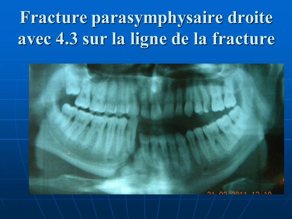 Fracture parasymphysaire droite avec 4.3 sur la ligne de la fracture