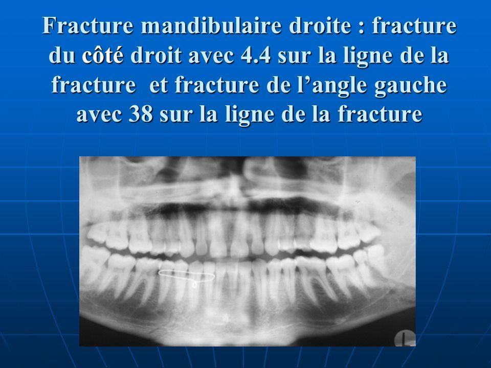 Fracture mandibulaire droite : fracture du côté droit avec 4