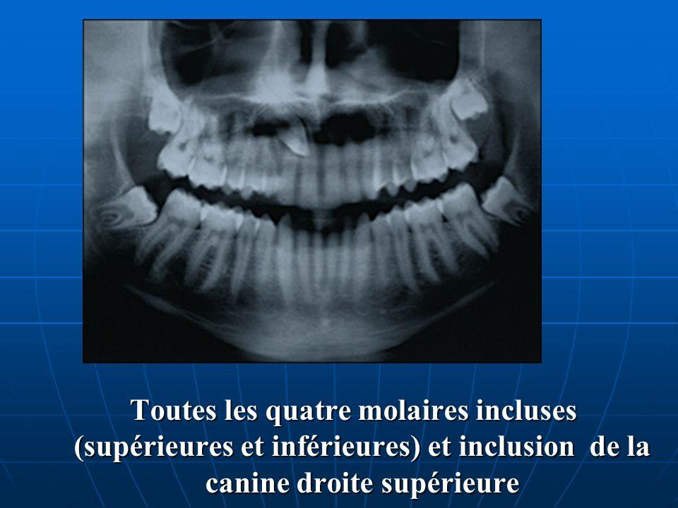 Toutes les quatre molaires incluses (supérieures et inférieures) et inclusion de la canine droite supérieure