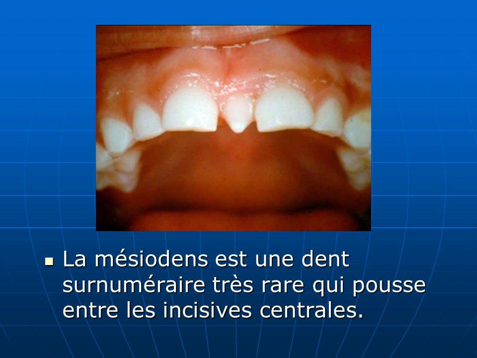 La mésiodens est une dent surnuméraire très rare qui pousse entre les incisives centrales.