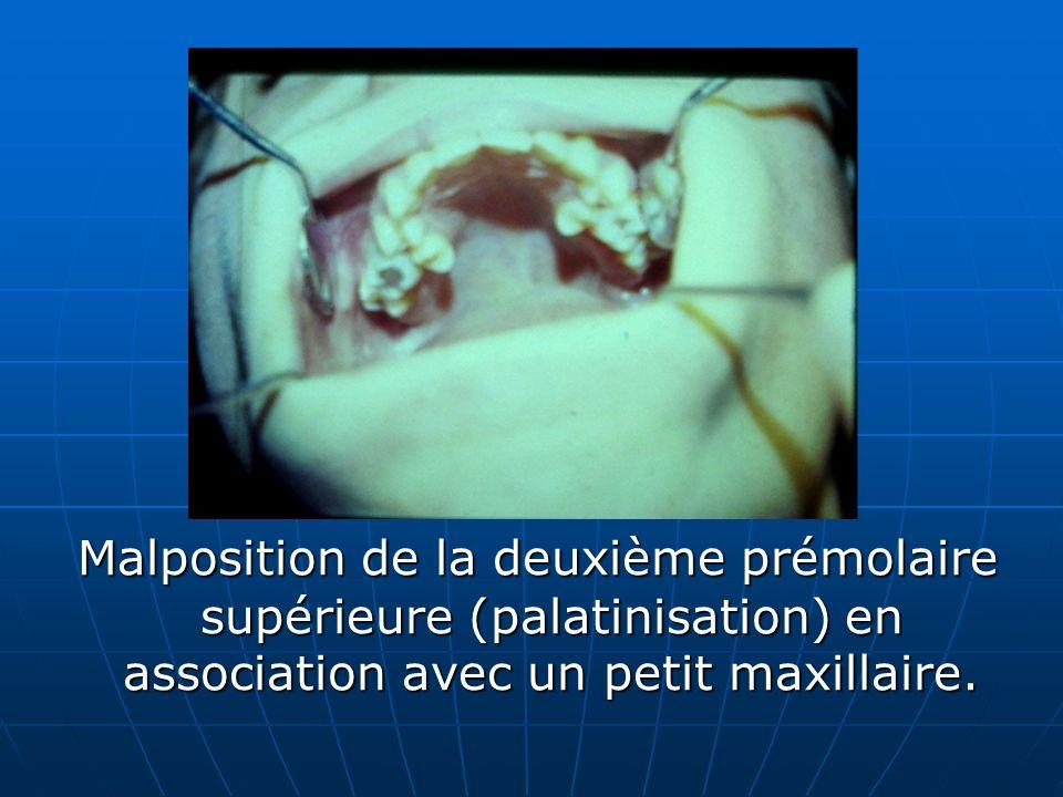 Malposition de la deuxième prémolaire supérieure (palatinisation) en association avec un petit maxillaire.