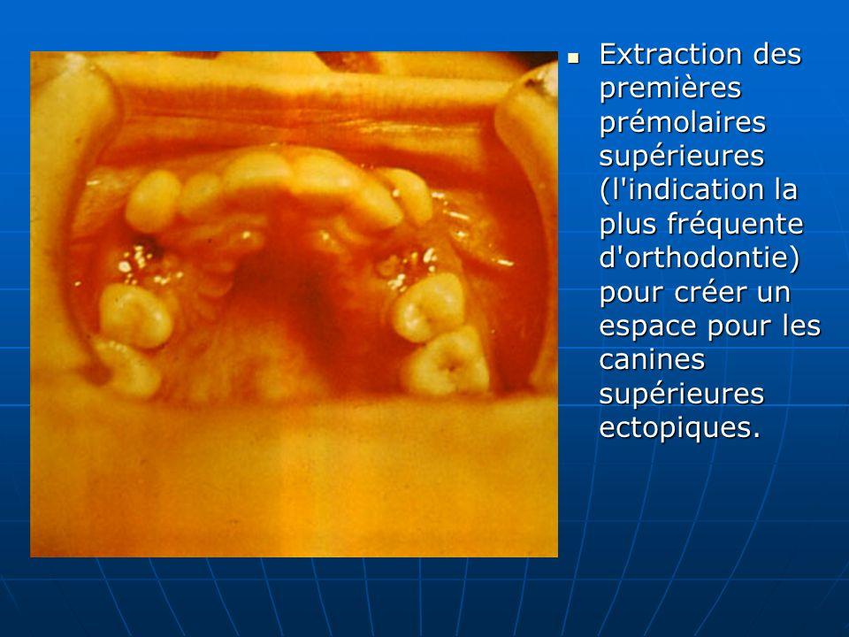 Extraction des premières prémolaires supérieures (l indication la plus fréquente d orthodontie) pour créer un espace pour les canines supérieures ectopiques.