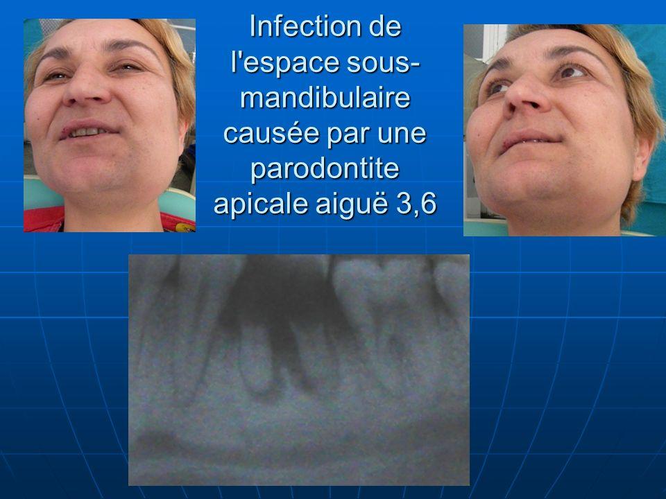 Infection de l espace sous-mandibulaire causée par une parodontite apicale aiguë 3,6