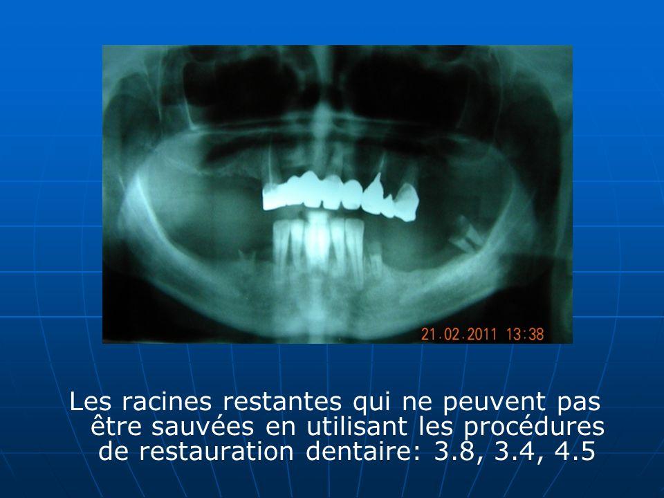 Les racines restantes qui ne peuvent pas être sauvées en utilisant les procédures de restauration dentaire: 3.8, 3.4, 4.5