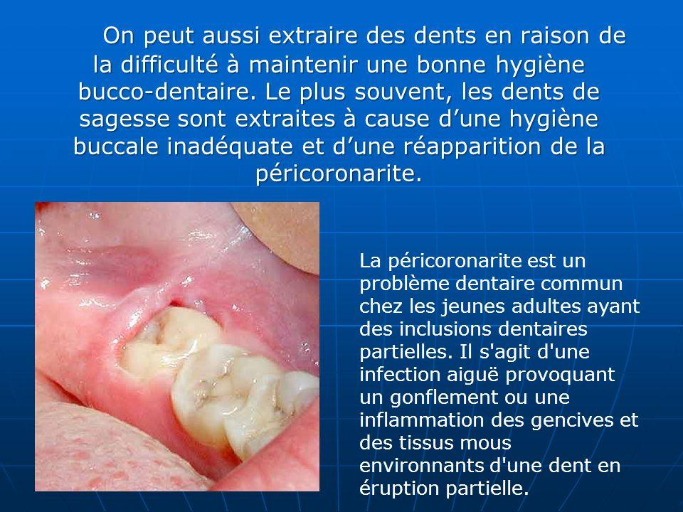 On peut aussi extraire des dents en raison de la difficulté à maintenir une bonne hygiène bucco-dentaire. Le plus souvent, les dents de sagesse sont extraites à cause d'une hygiène buccale inadéquate et d'une réapparition de la péricoronarite.