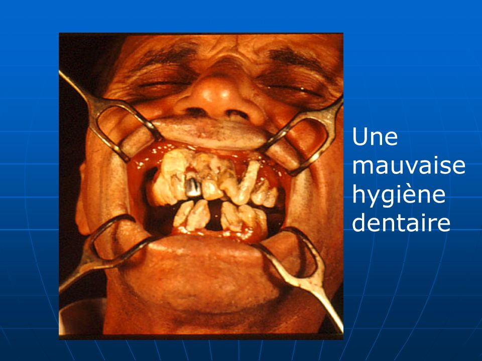 Une mauvaise hygiène dentaire