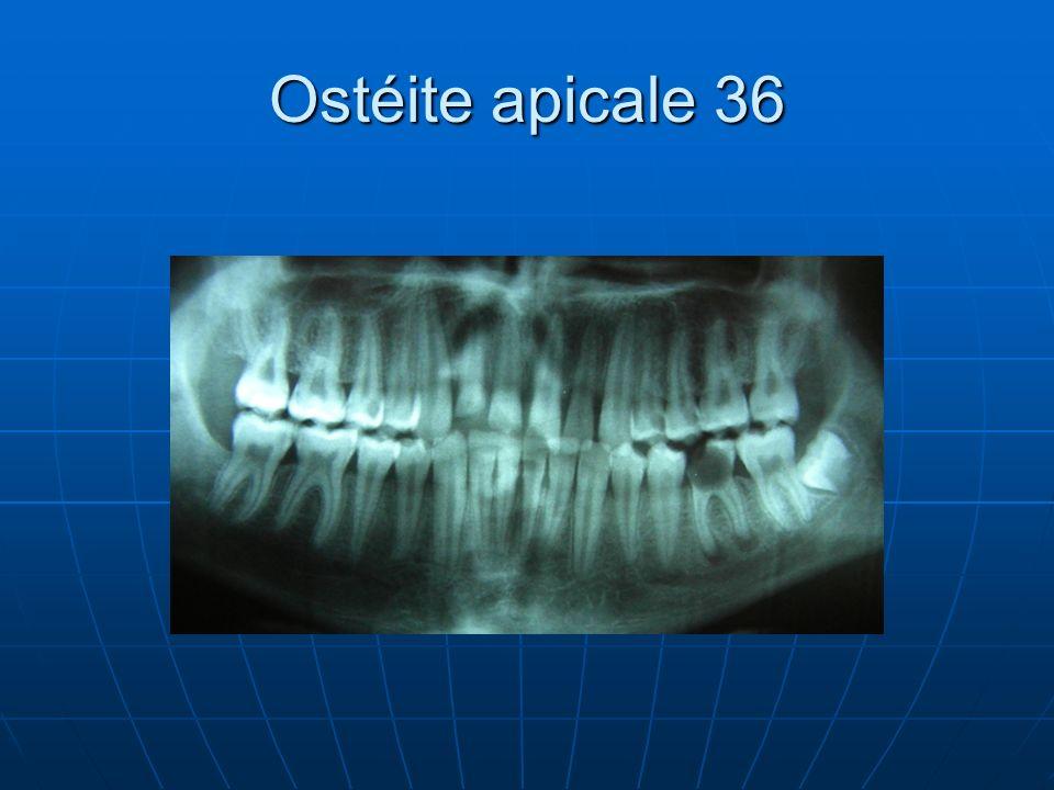 Ostéite apicale 36