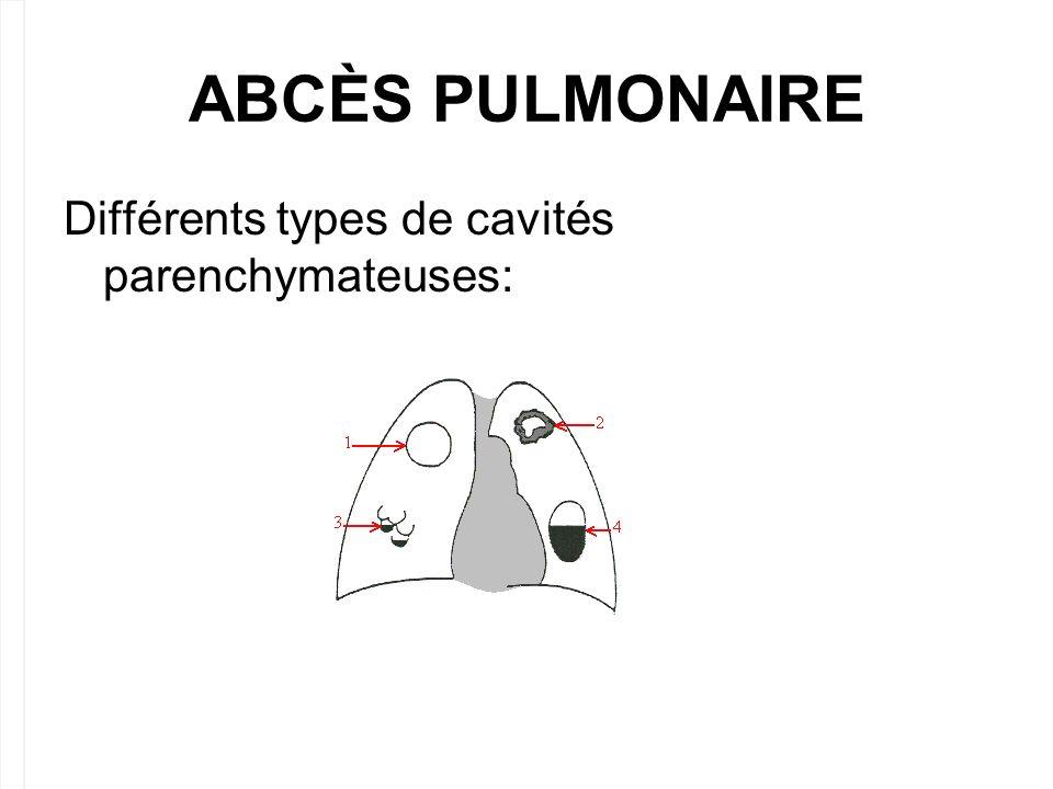 ABCÈS PULMONAIRE. Différents types de cavités parenchymateuses: