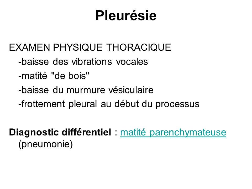 Pleurésie EXAMEN PHYSIQUE THORACIQUE -baisse des vibrations vocales