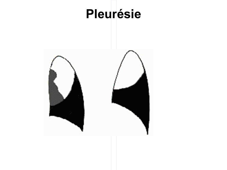 Pleurésie