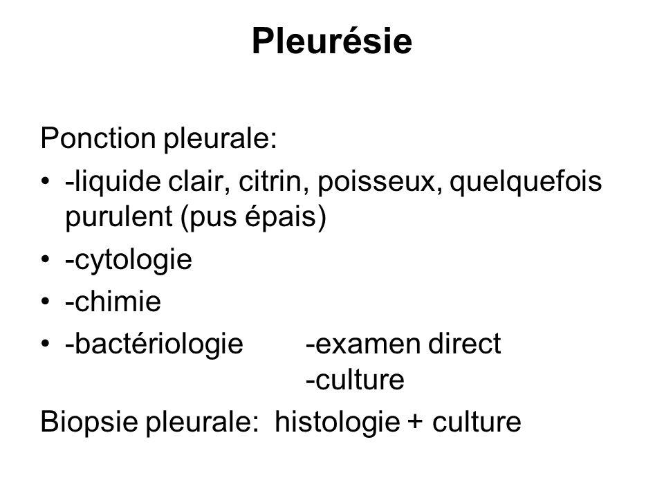 Pleurésie Ponction pleurale: