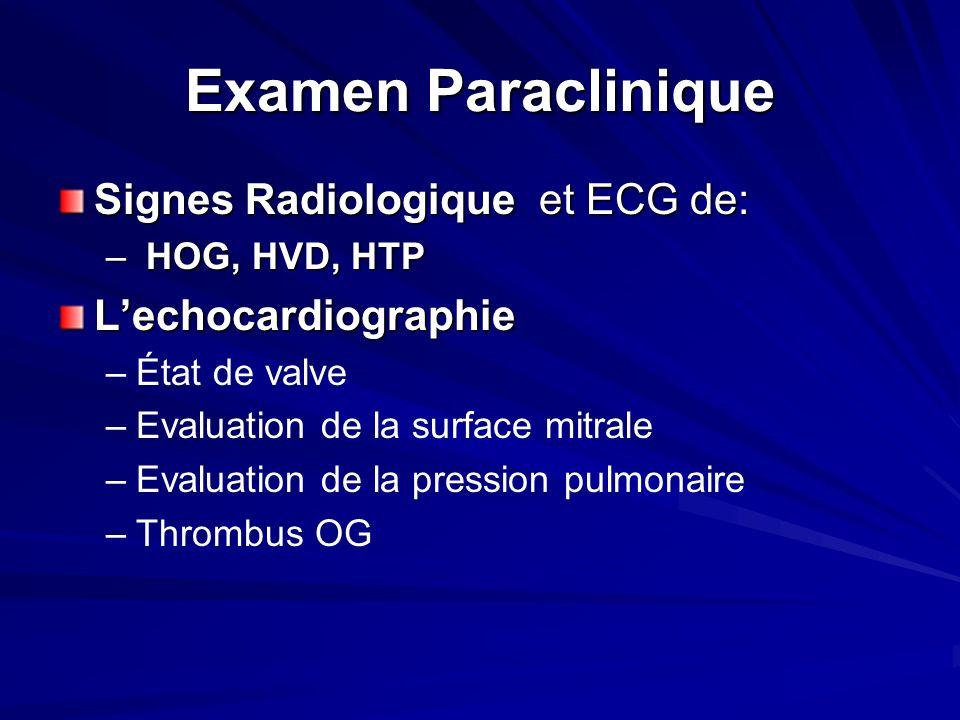 Examen Paraclinique Signes Radiologique et ECG de: L'echocardiographie