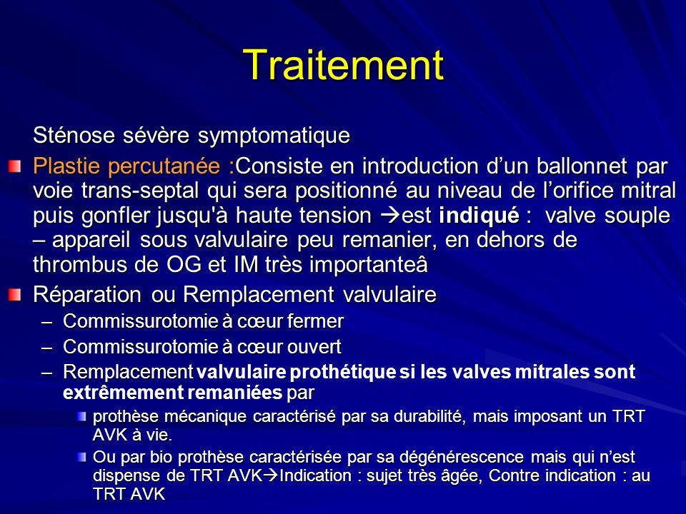 Traitement Sténose sévère symptomatique