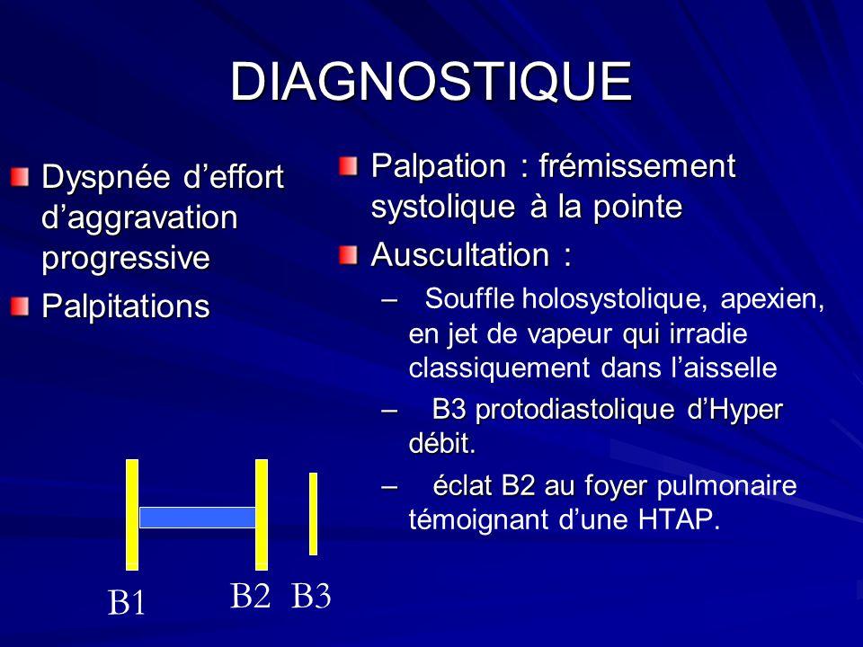 DIAGNOSTIQUE B2 B3 B1 Palpation : frémissement systolique à la pointe