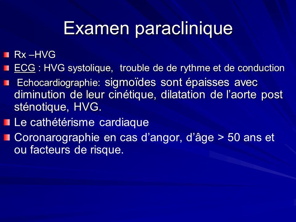 Examen paraclinique Le cathétérisme cardiaque