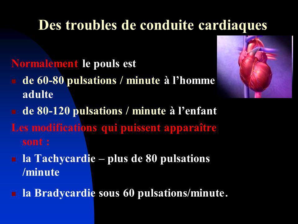 Des troubles de conduite cardiaques