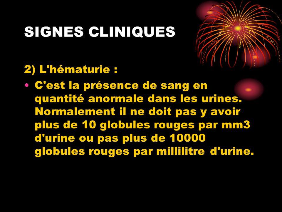SIGNES CLINIQUES 2) L hématurie :