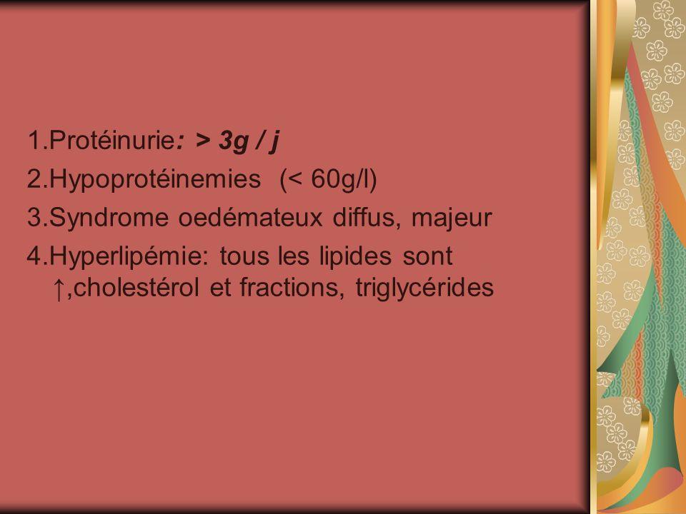 1.Protéinurie: > 3g / j 2.Hypoprotéinemies (< 60g/l) 3.Syndrome oedémateux diffus, majeur.