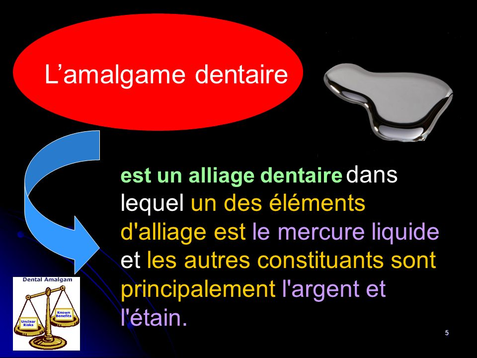 L'amalgame dentaire