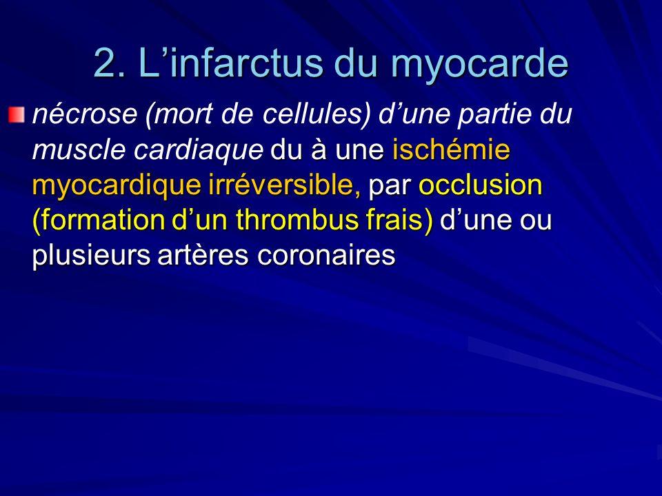 2. L'infarctus du myocarde