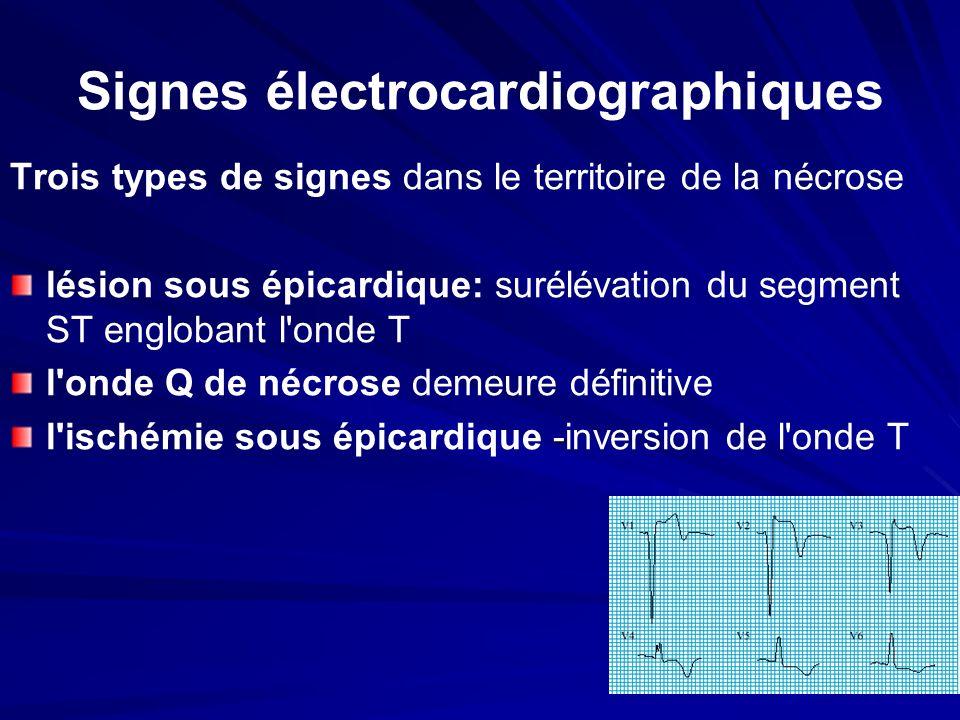 Signes électrocardiographiques