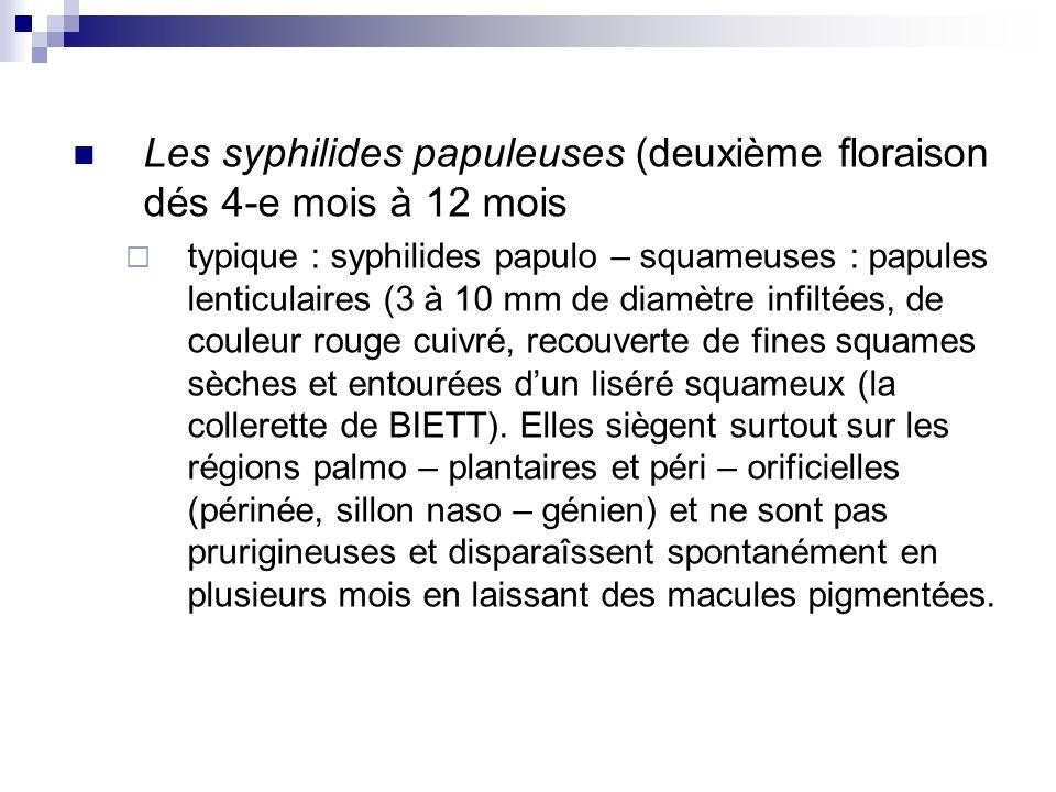 Les syphilides papuleuses (deuxième floraison dés 4-e mois à 12 mois