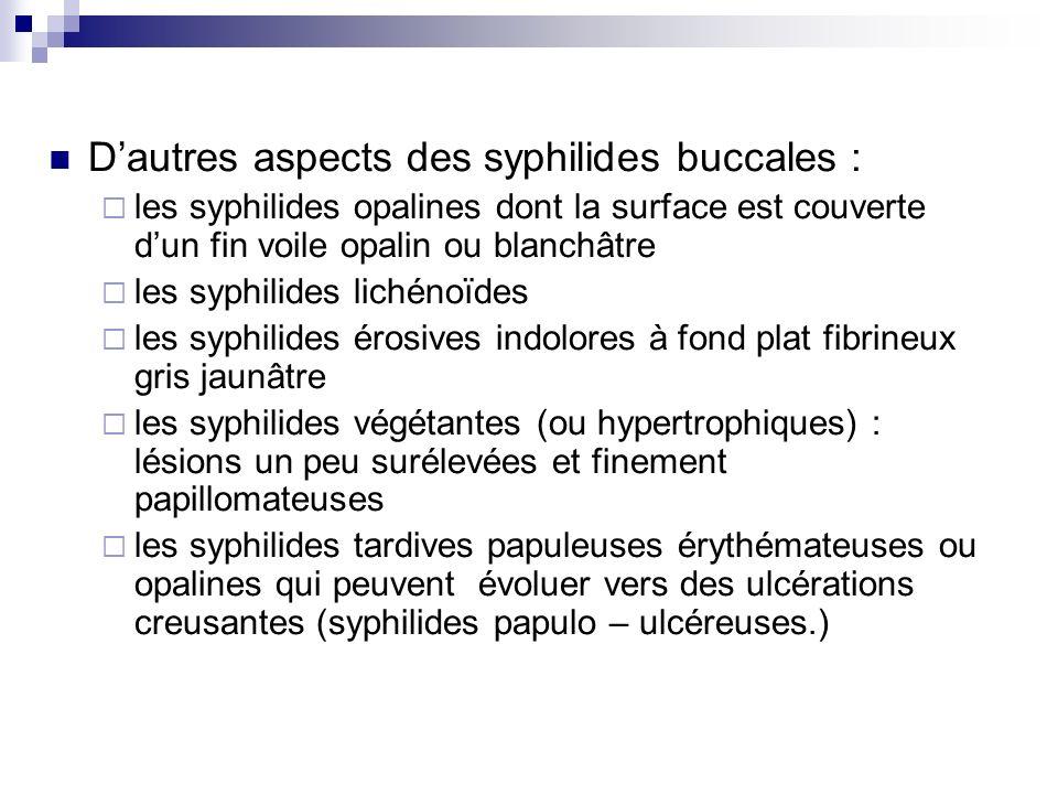 D'autres aspects des syphilides buccales :