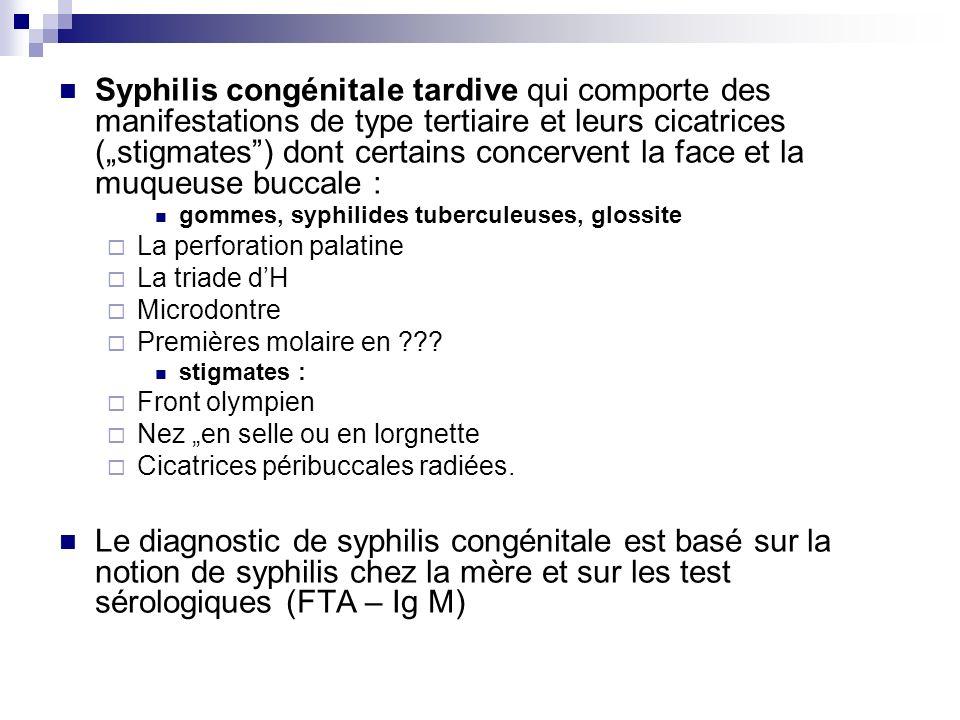 """Syphilis congénitale tardive qui comporte des manifestations de type tertiaire et leurs cicatrices (""""stigmates ) dont certains concervent la face et la muqueuse buccale :"""