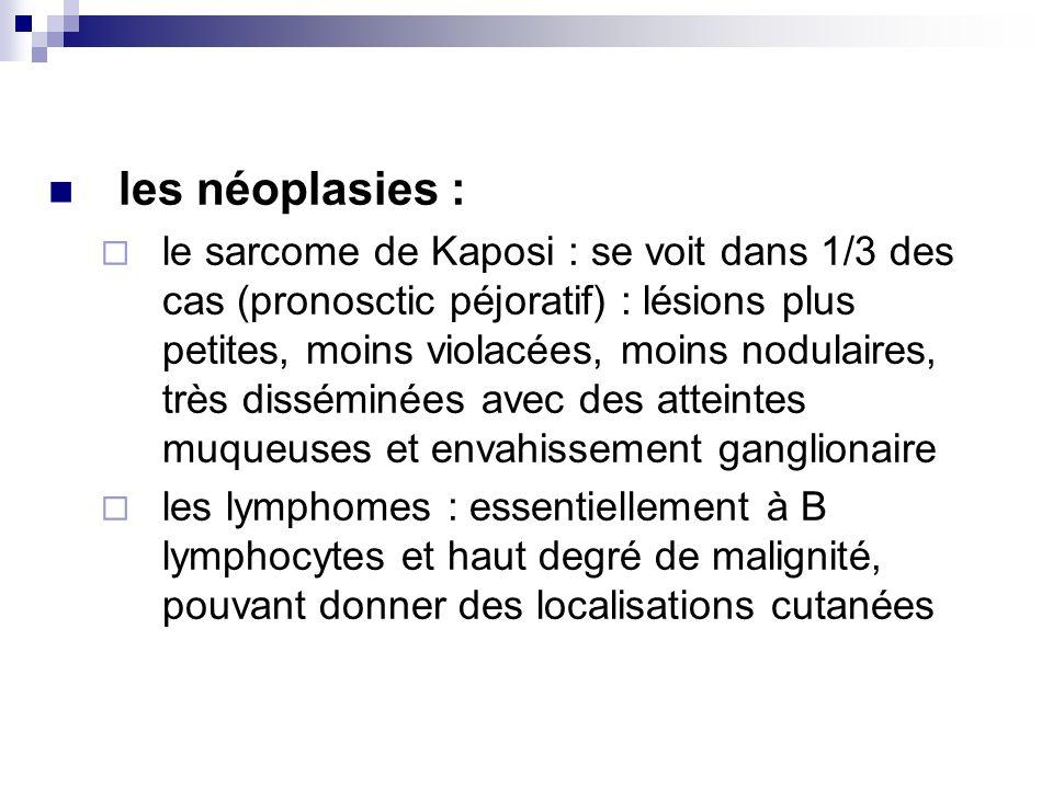les néoplasies :