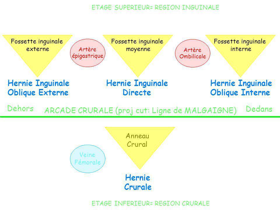 Hernie Inguinale Directe Hernie Crurale