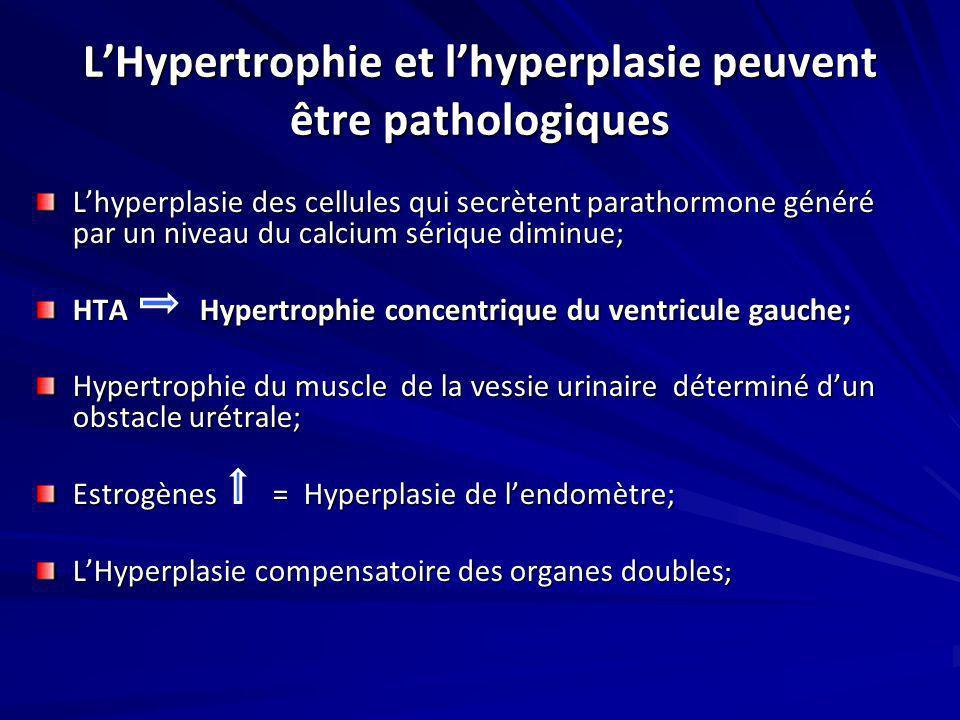 L'Hypertrophie et l'hyperplasie peuvent être pathologiques