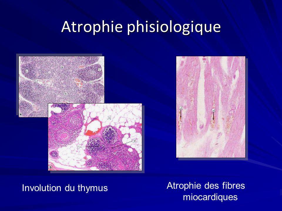 Atrophie phisiologique
