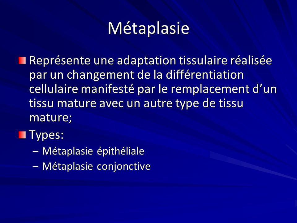 Métaplasie