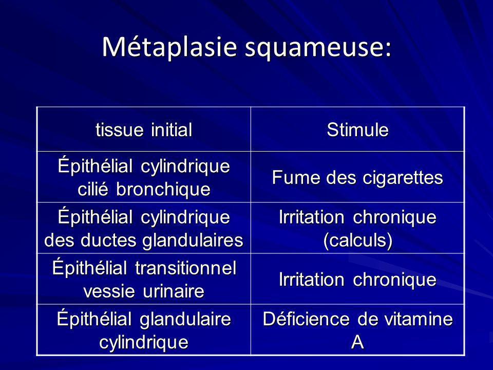Métaplasie squameuse: