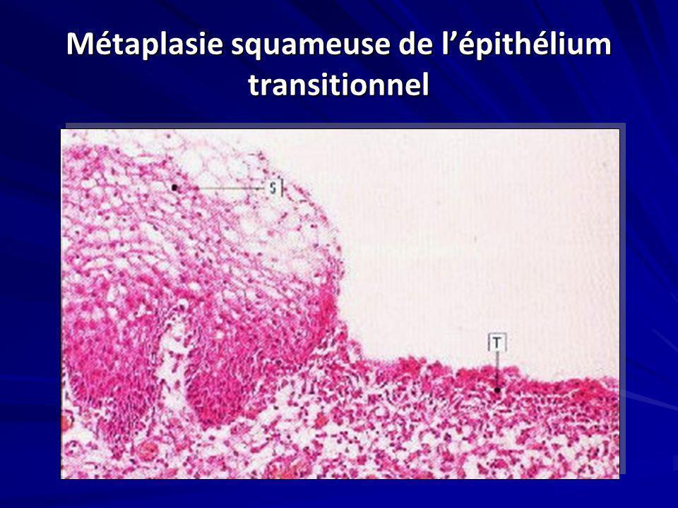 Métaplasie squameuse de l'épithélium transitionnel