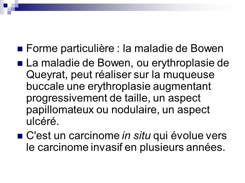 Forme particulière : la maladie de Bowen