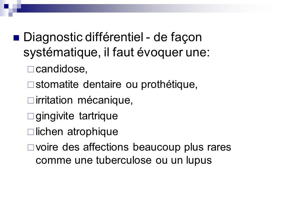 Diagnostic différentiel - de façon systématique, il faut évoquer une: